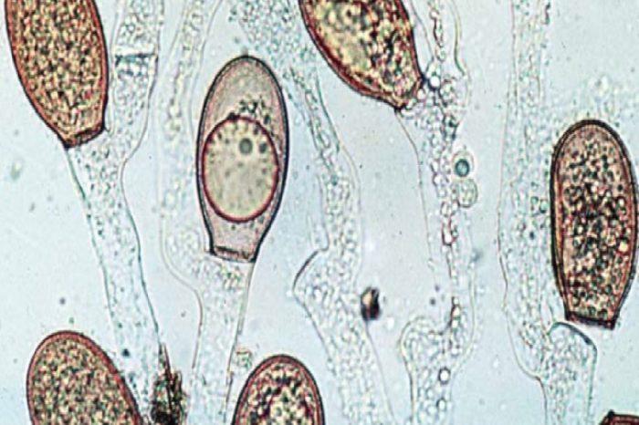 Healthcare: Hazards and Risk Factors of Multidrug-Resistant Organisms