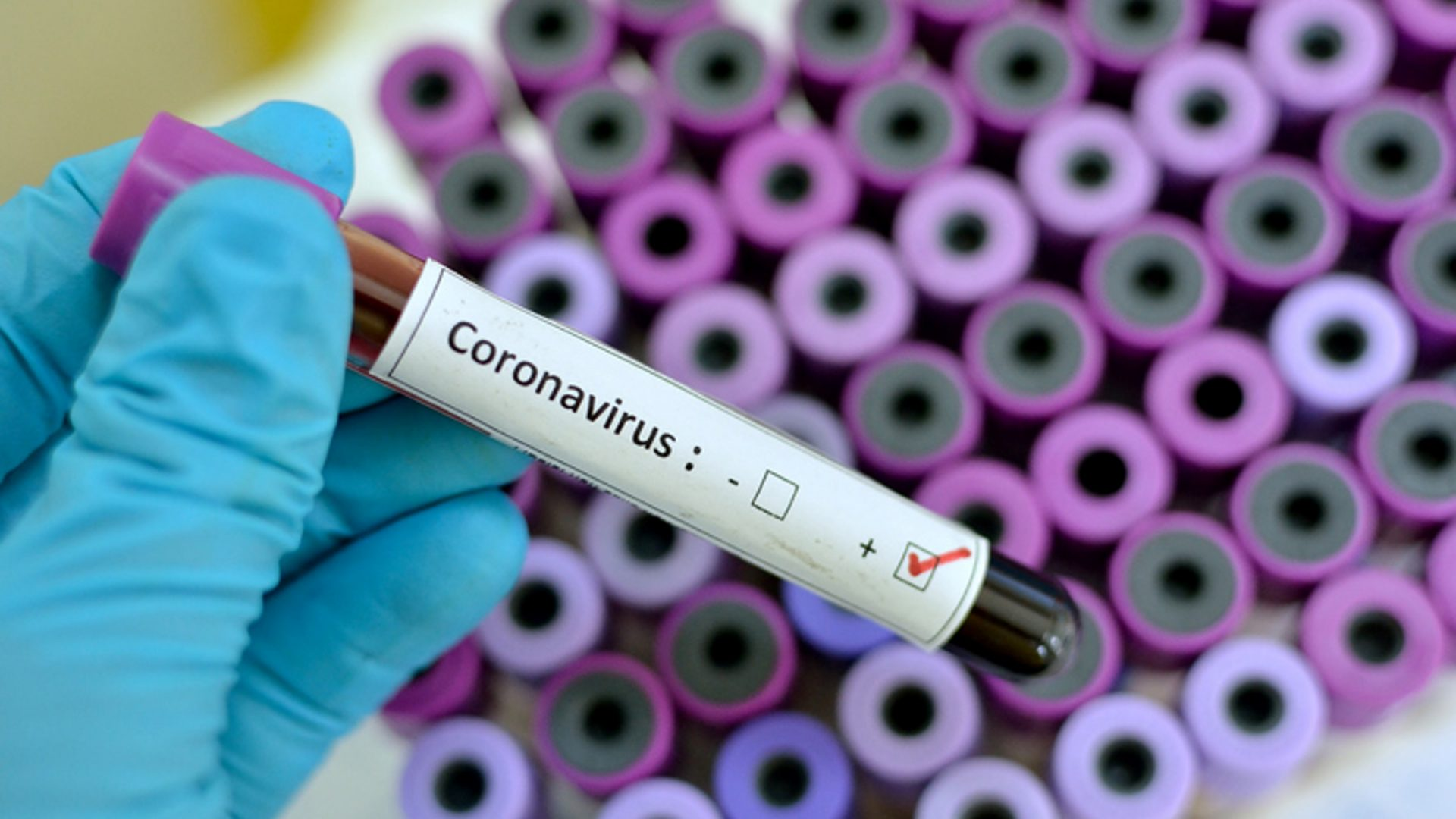 What You Need to Know About the Coronavirus (COVID-19) – Spanish